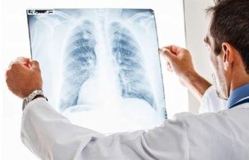 Pnömokonyoza Bağlı Hastalıklar