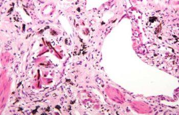 Sideroza Bağlı Hastalıklar