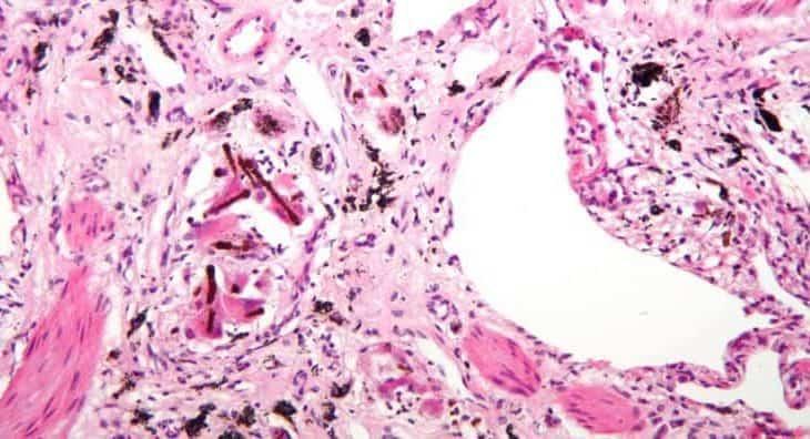 Sideroza Bağlı Hastalıklar 1
